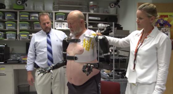 Бионические руки уже сегодня