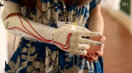 bionic-arm-02