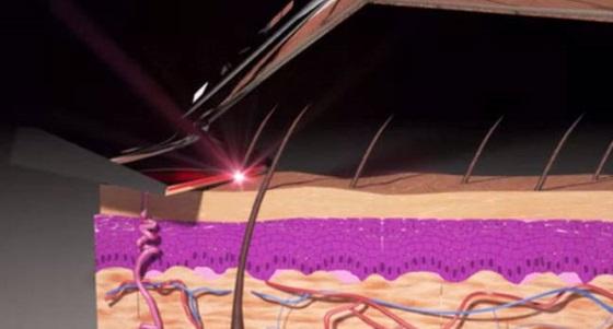 Kickstarter отменил проект лазерной бритвы