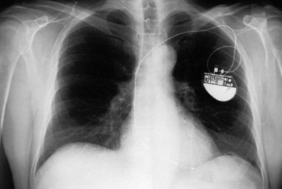 Даже кардиостимуляторы подвержены взлому